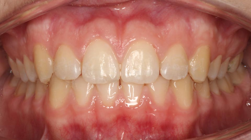 After image of a smile at Dougherty Orthodontics