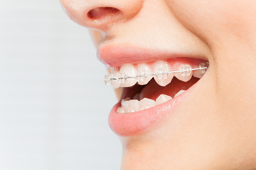 Which Types of Devices Can Correct a Bite Aside from Braces and Aligners?