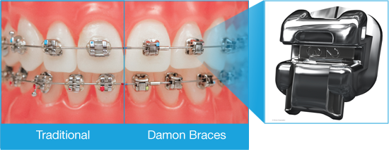 Damon braces compared to traditional braces at Dougherty Orthodontics