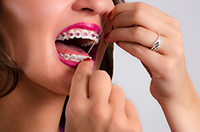 Woman flossing her teeth with braces at Dougherty Orthodontics