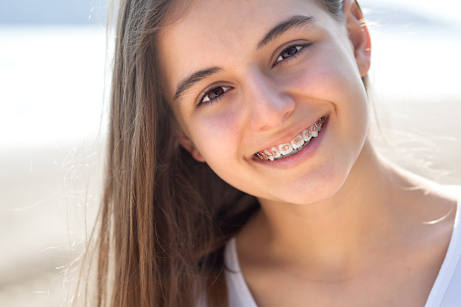 A girl smiling at Dougherty Orthodontics after her emergency orthodontic treatment